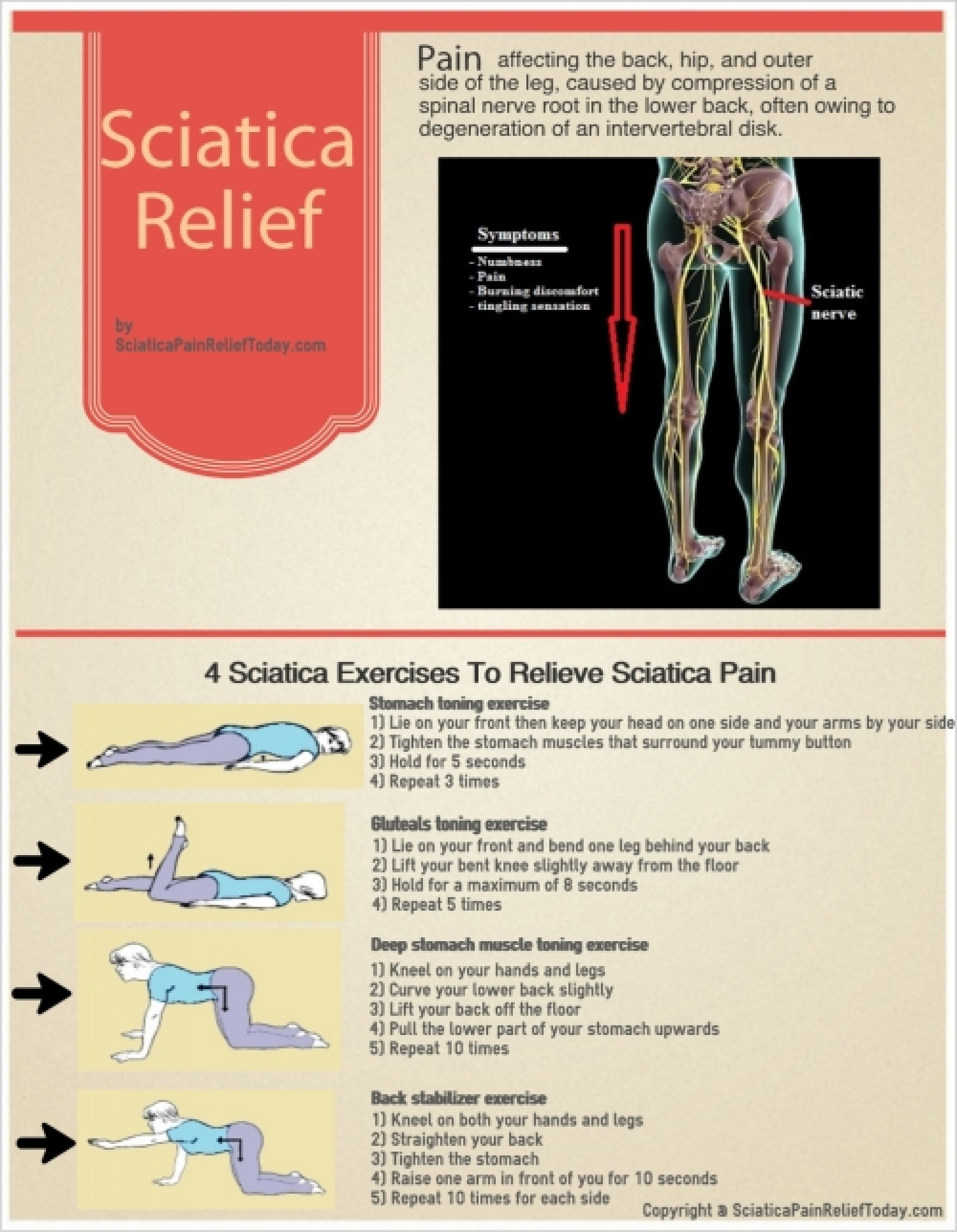 4 Sciatica Exercises To Relieve Sciatica Pain Infographic