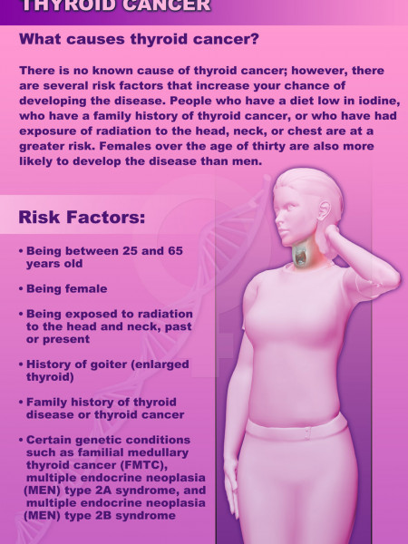 Thyroid Cancer Infographic
