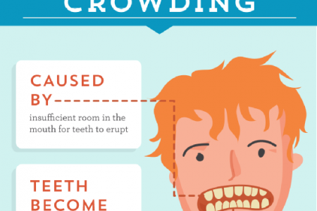 A Close-Up Look at Common Dental Issues Infographic