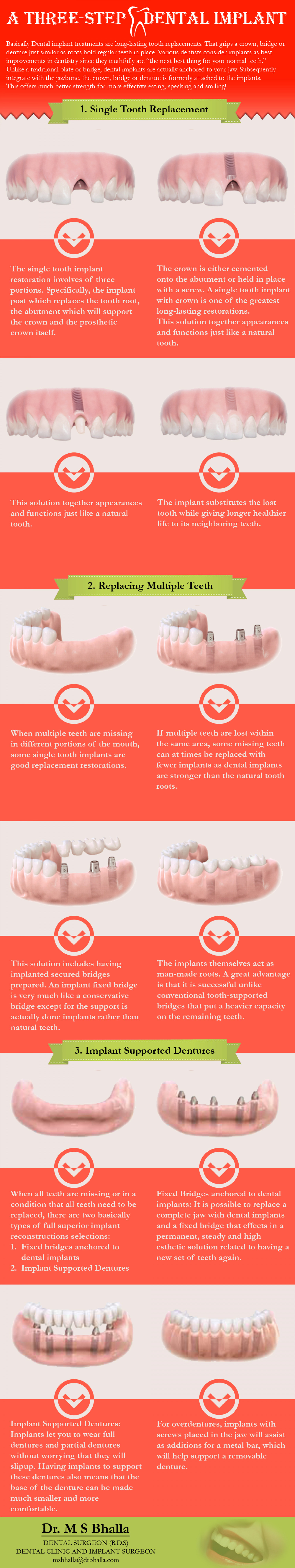 A Three Step Dental Implant Infographic
