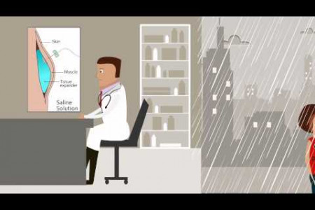How it works video for Airxpander - a patient controlled tissue expander system Infographic