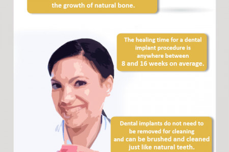 All About Dental Implants Infographic
