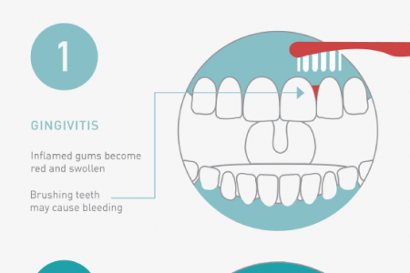 An Inside Look at Gum Disease Infographic