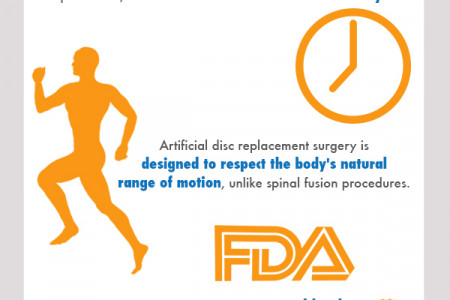 Artificial Disc Surgery Infographic