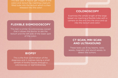 Bowel Cancer Overview Infographic
