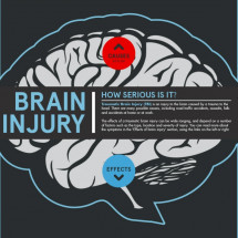 Brain Injury - How Serious Is It? Infographic