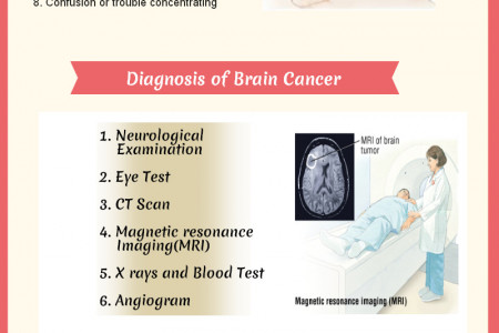 Brain Tumors Doctors/Physicians Infographic