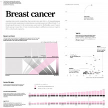 Breast cancer in Hong Kong Infographic