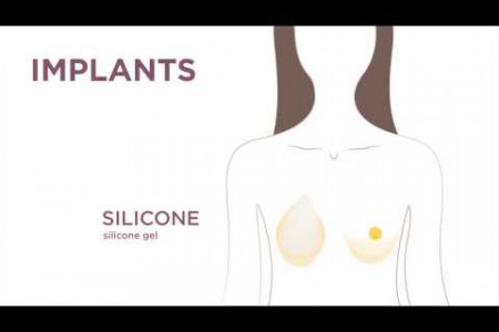 Breast Reconstruction Using Your Own Tissue and Implants Infographic