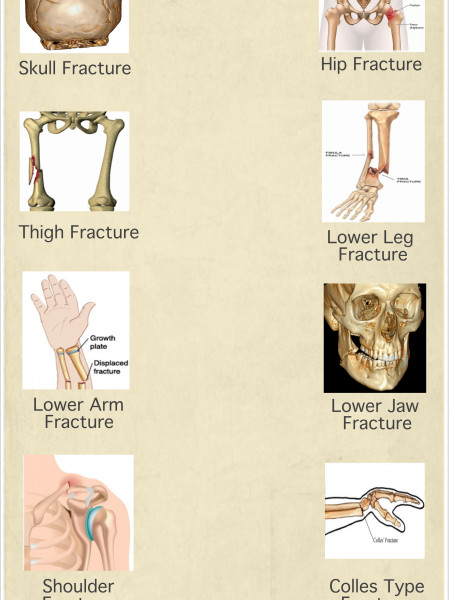 Broken Bones Covered Under Personal Accident Insurance Infographic