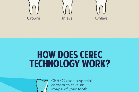 Choose CEREC for a Better Smile Infographic