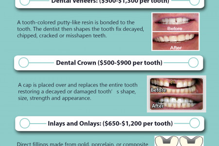 Common Cosmetic Dentistry Procedures Infographic