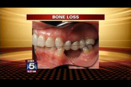 Coping with Tooth Loss Infographic