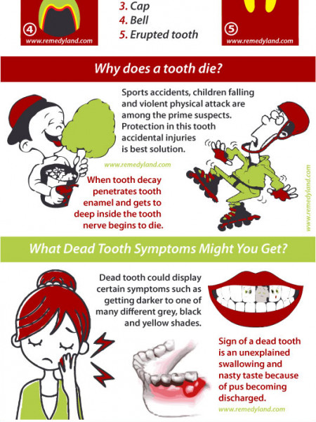 Life of a Dead Tooth Infographic