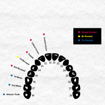 Decoding Your Teeth Infographic