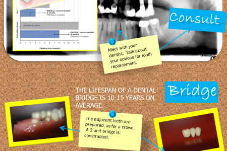 Dental Implant vs. Bridge Infographic