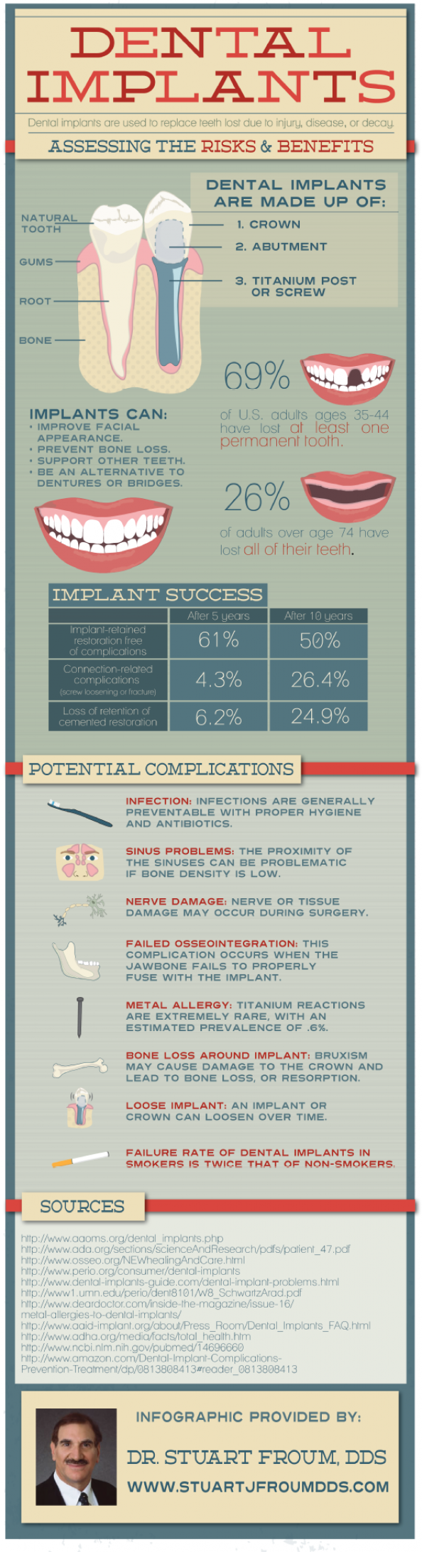 Dental Implants: Assessing the Risks & Benefits  Infographic