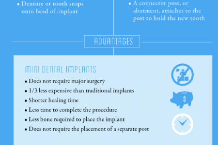 Dental Implants for Healthy Smiles Infographic