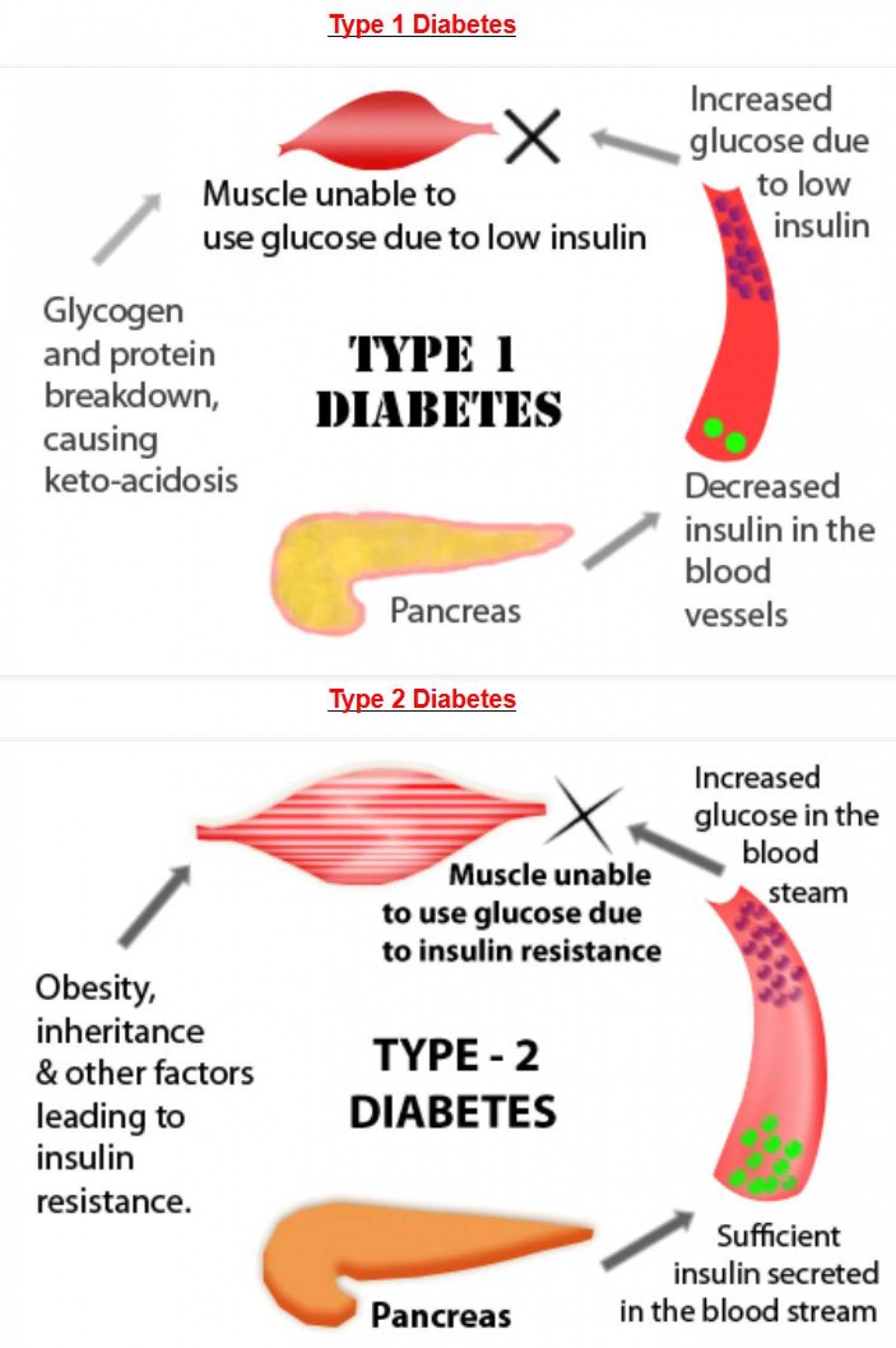 what is type 2 diabetes mellitus nursing essay Public health issue: diabetes mellitus type 1 diabetes occurs when the body does not produce any insulin and type 2 diabetes occurs when (nursing and.