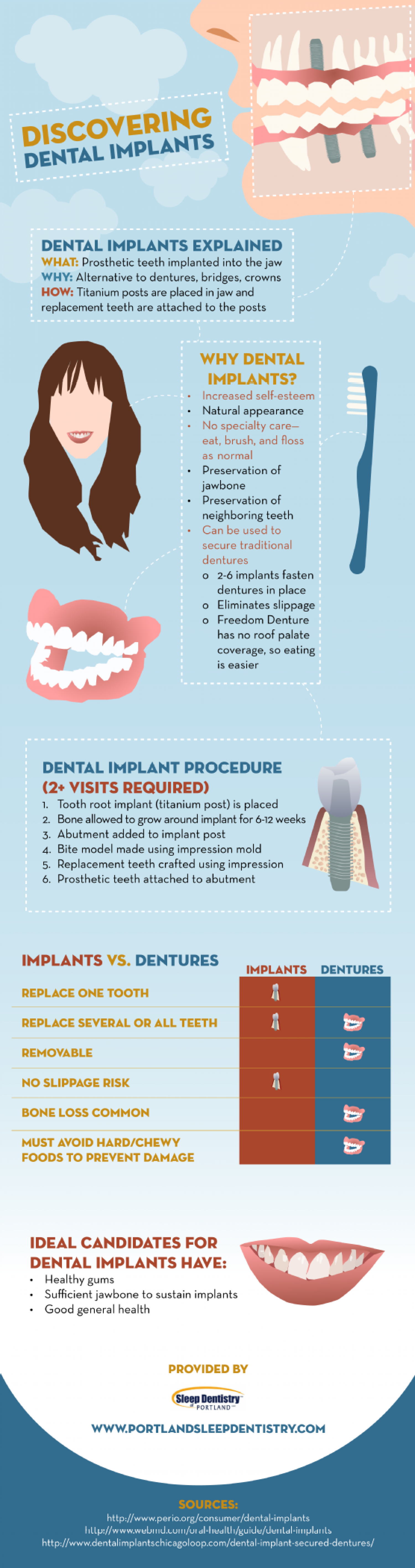 Discovering Dental Implants Infographic