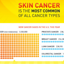 Don't Fry: Preventing Skin Cancer Infographic