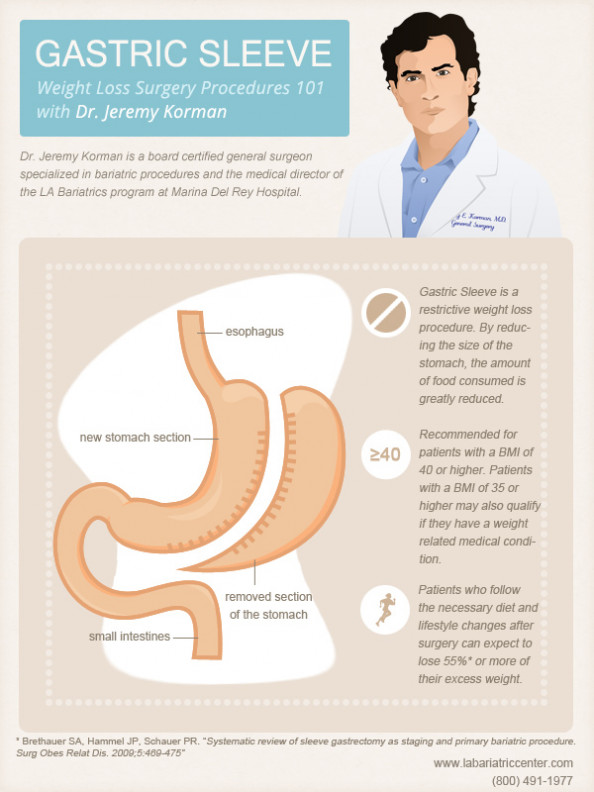Dr. Jeremy Korman explaining the gastric sleeve procedure Infographic