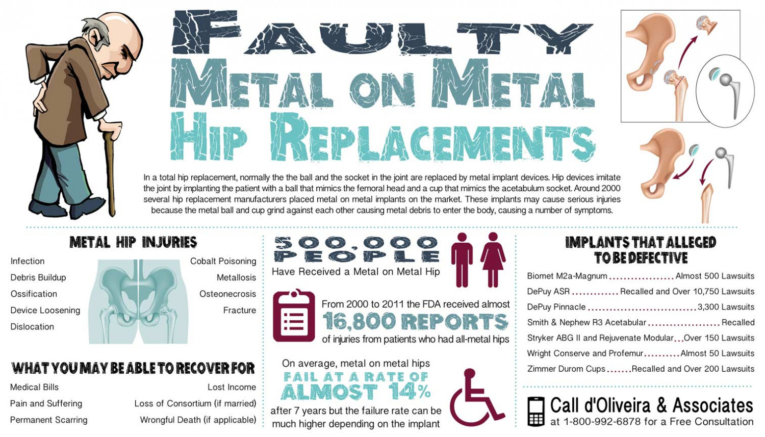 Faulty Metal on Metal Hip Replacements Infographic