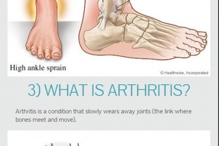 Five Common Foot Problems Infographic