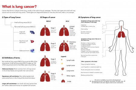 Gender & Lung Cancer Infographic