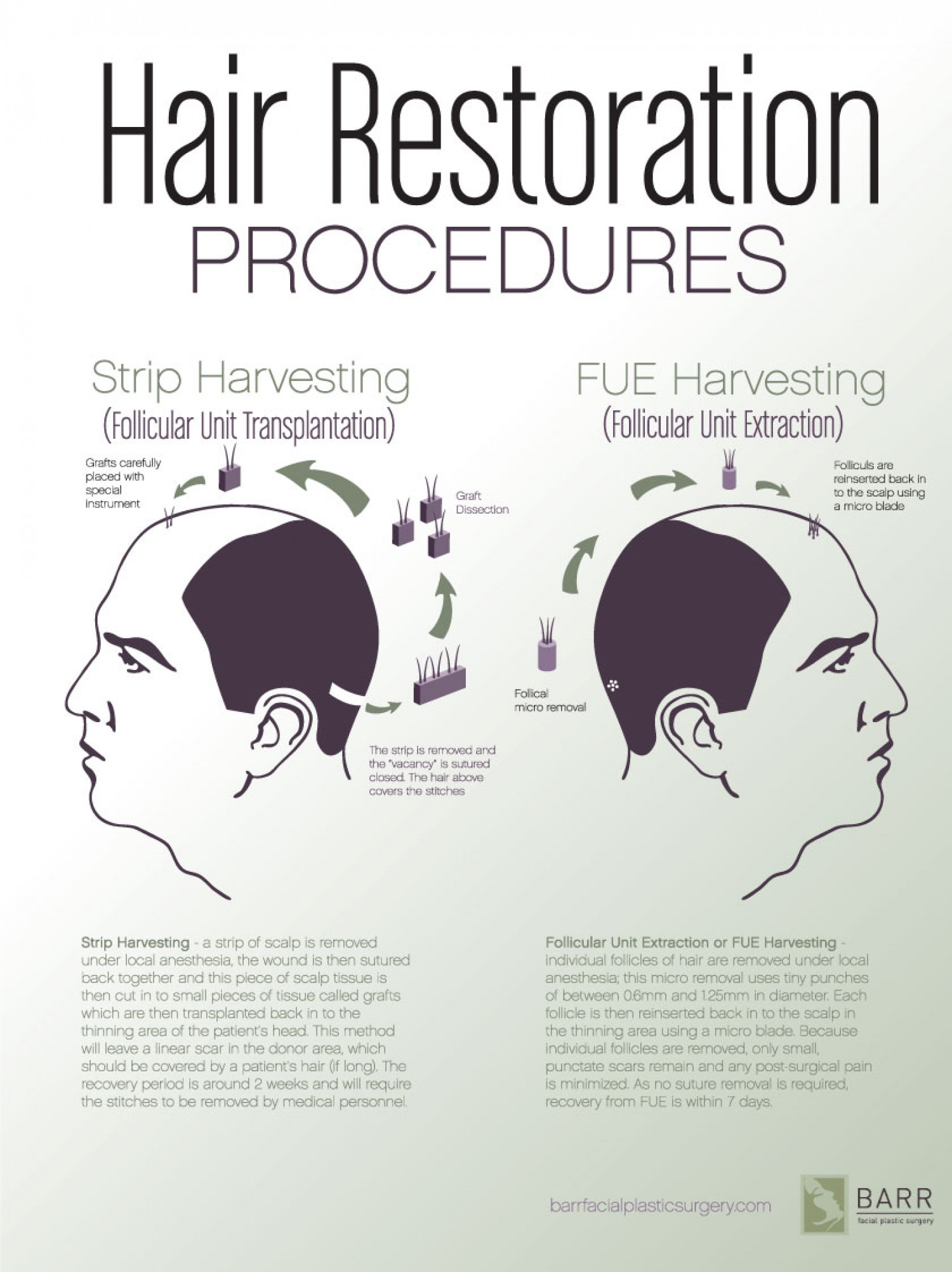 Hair Procedures Infographic