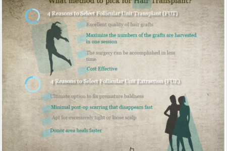 Hair transplant New jersey    Infographic
