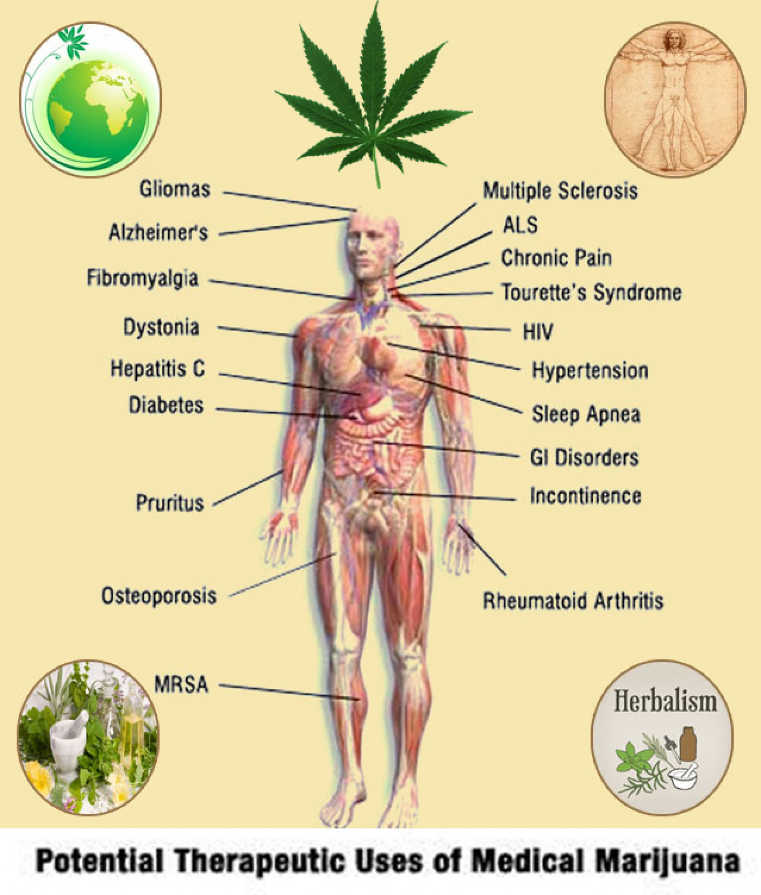 Herbal Benefits of Medical Marijuana Infographic
