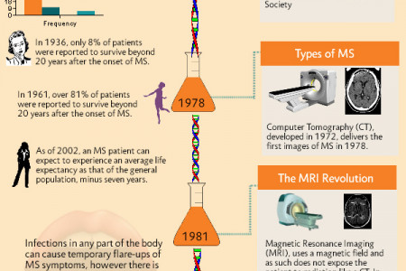 History of Multiple Sclerosis Infographic