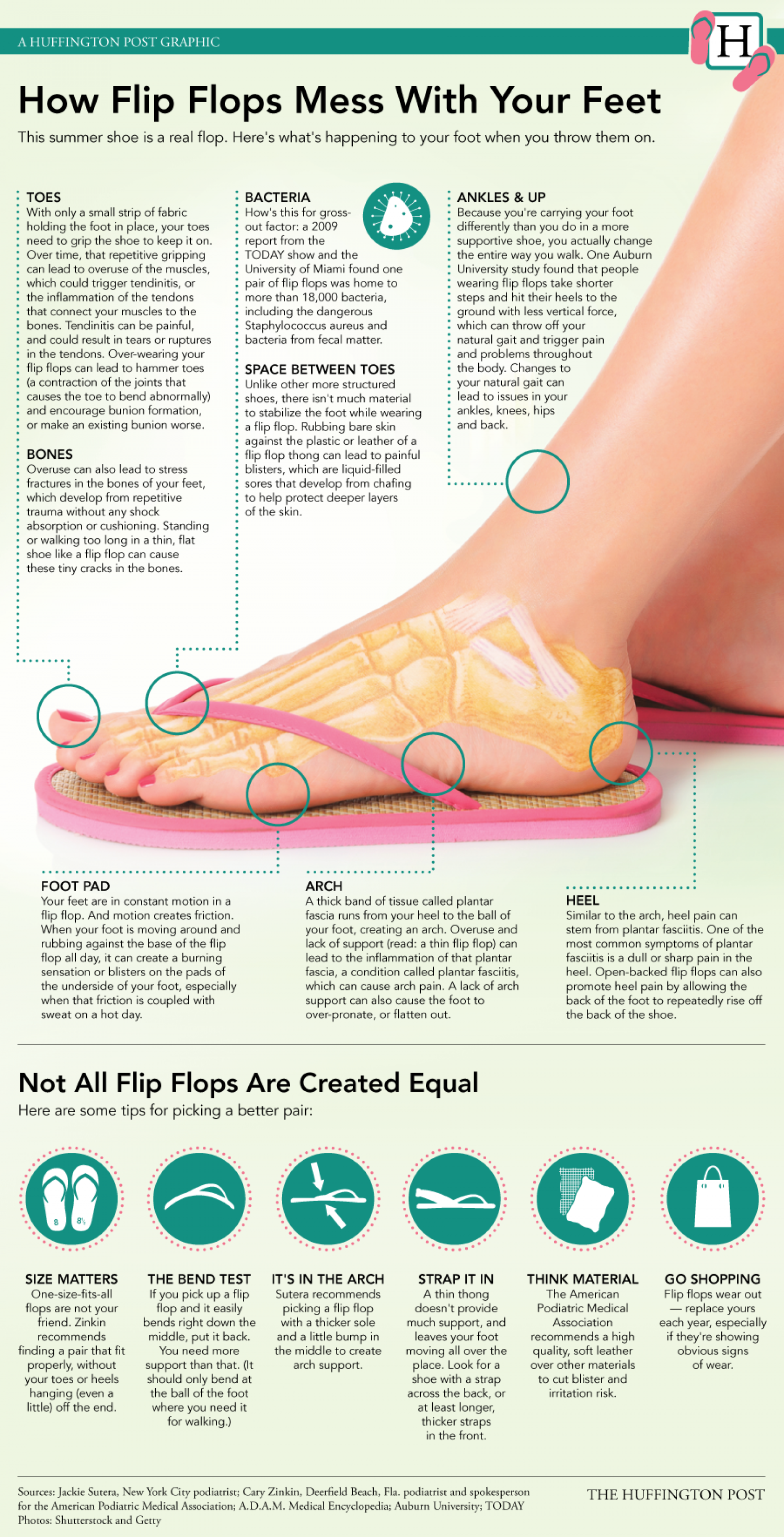 How Flip Flops Mess With Your Feet Infographic