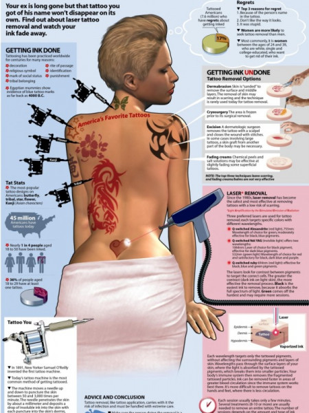 How to Get Rid of a Tattoo  Infographic