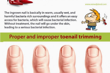Ingrown Toenail or Onychocryptosis Infographic