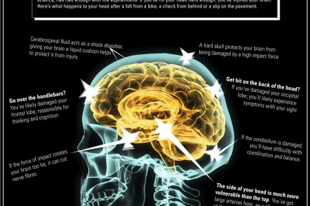 Inside a brain injury Infographic