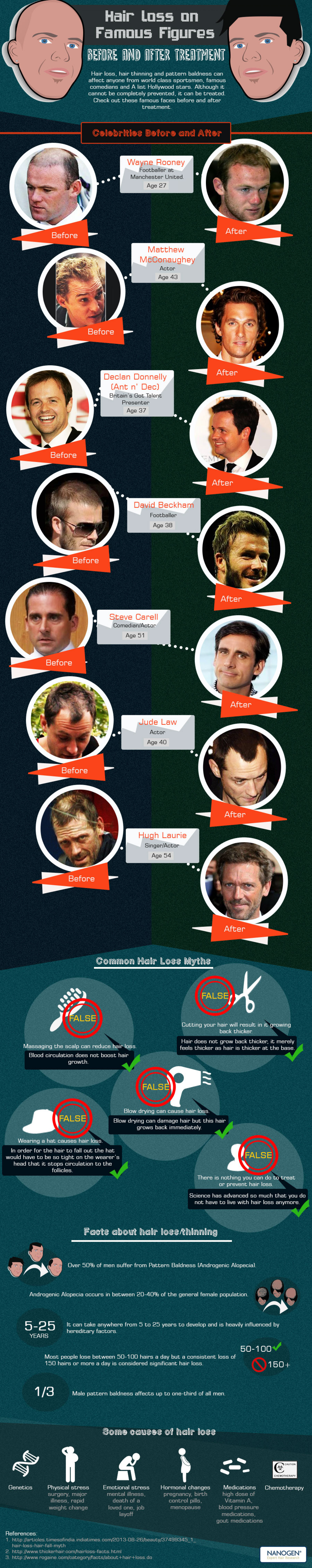 Hair Loss on Famous Figures: Before and After Treatment  Infographic