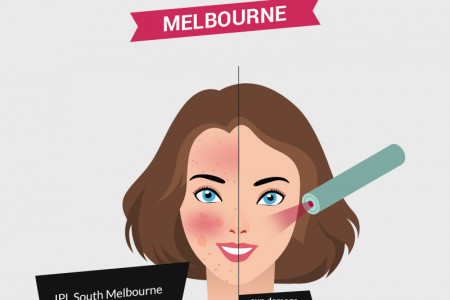 IPL Laser Treatment in Melbourne Infographic