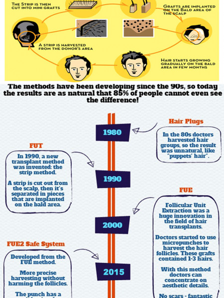 Know How the Hair Transplantation Process is Upgrading? Infographic