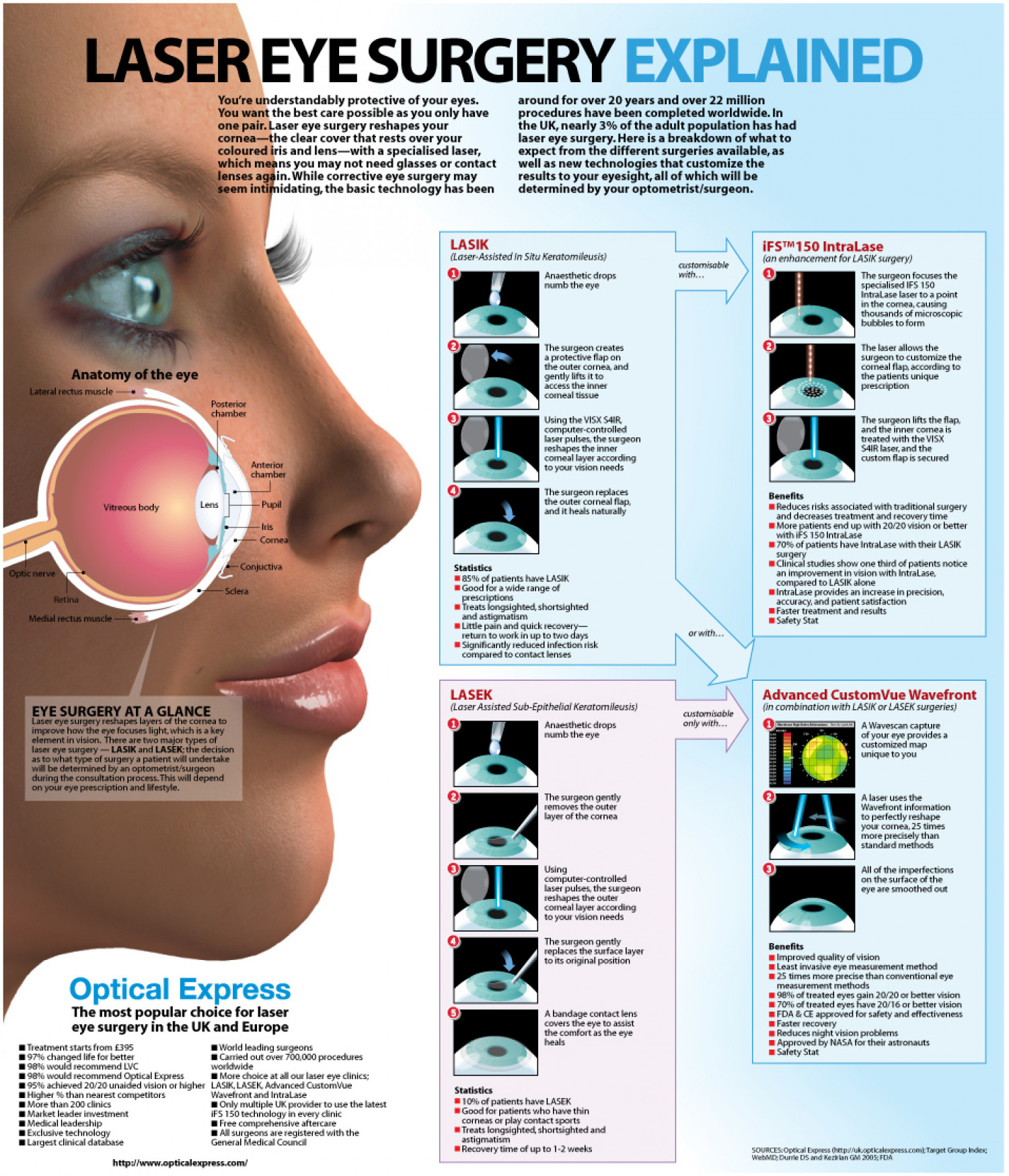 Laser Eye Surgery Explained Infographic