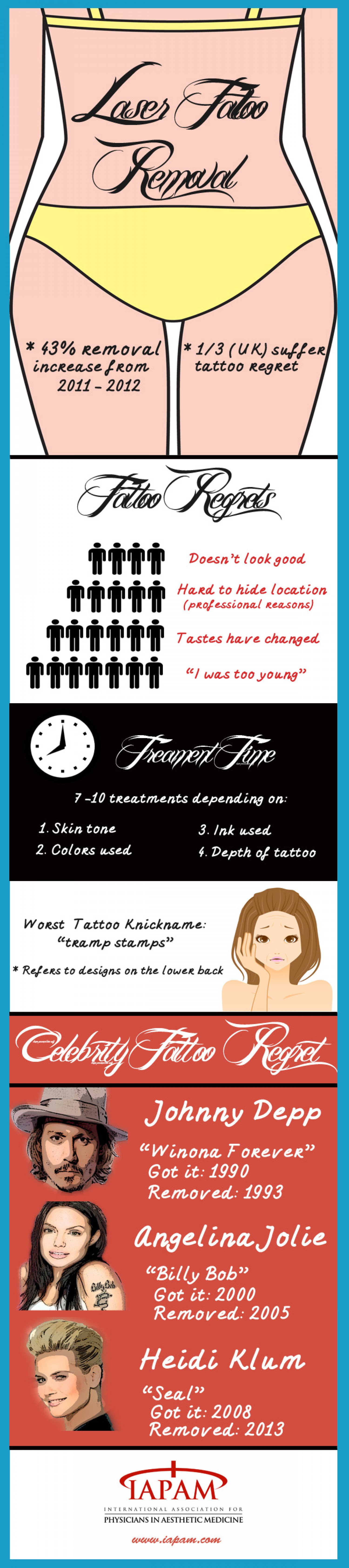 Laser Tattoo Removal Infographic