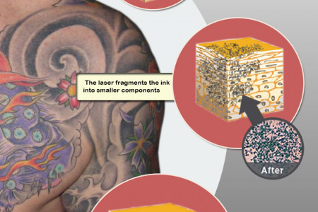 Looking Deeply At Laser Tattoo Removal Infographic