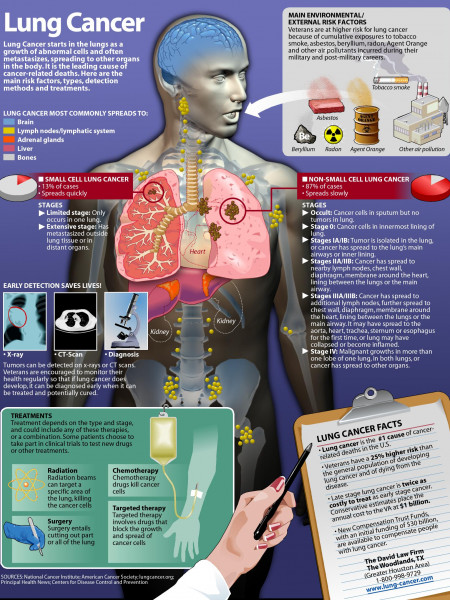 Lung Cancer Infographic