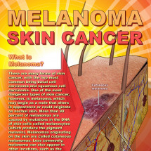 Melanoma Skin Cancer  Infographic