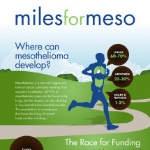 Miles for Mesothelioma: Racing for a Mesothelioma Cure [infographic] Infographic
