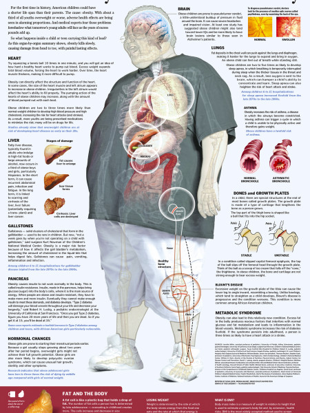 Obesity in Children Infographic
