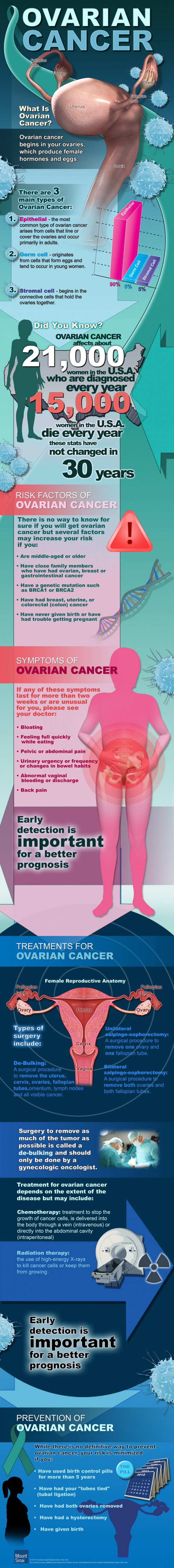 Ovarian Cancer: What is Ovarian Cancer? Infographic
