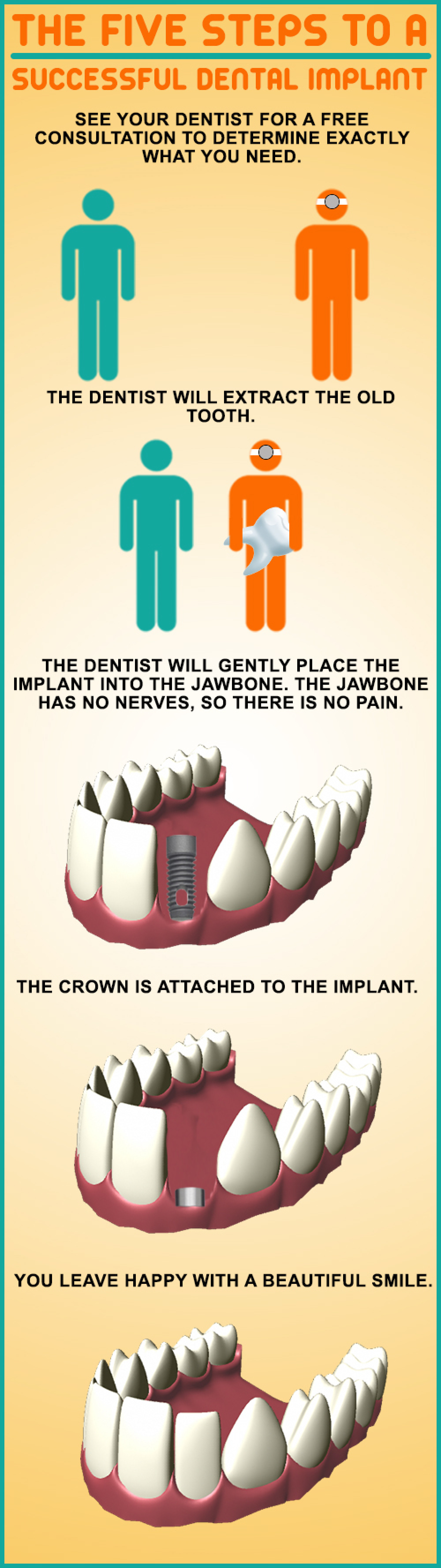 Pat Crawford DDS Explains Dental Implants Infographic