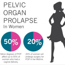 Pelvic Organ Prolapse Infographic